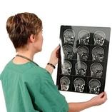 Лейкоареоз головного мозга — это страшно и опасно