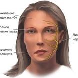 Невринома слухового нерва: причины, симптомы и лечение опухоли