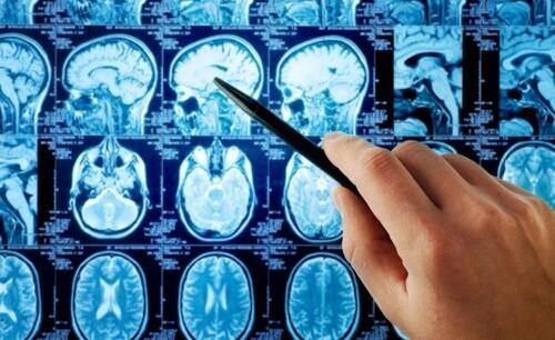 Доброкачественная опухоль головного мозга, рак мозга – признаки, симптомы опухоли головного мозга на ранних стадиях, лечение