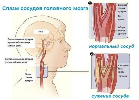 Спазмы сосудов головы чем лечить