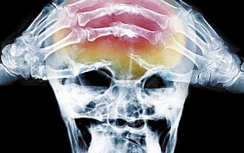Киста в лобной доле головного мозга
