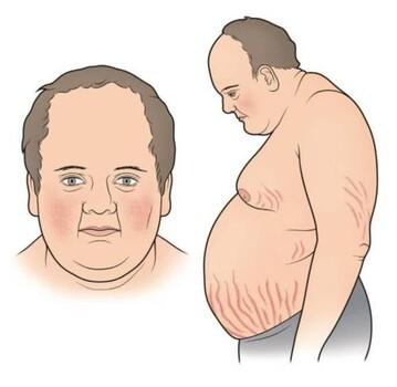 Синдром кушинга симптомы у женщин лечение