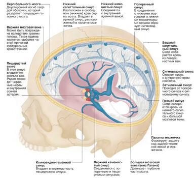 Гидроцефалия головного мозга: лечение, симптомы и причины