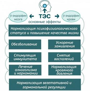 ТЭС терапия: метод электростимуляции мозга