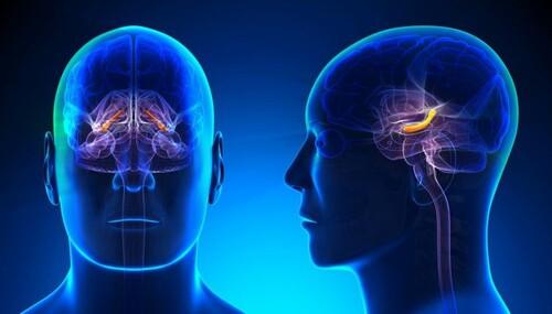 Олигодендроглиома головного мозга - что это