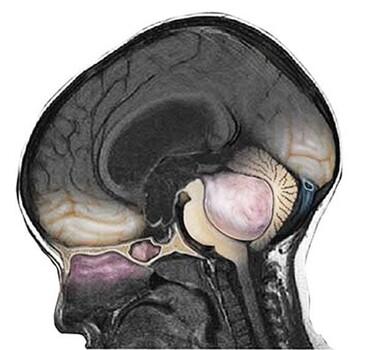 Медуллобластома червя мозжечка и 4 желудочка