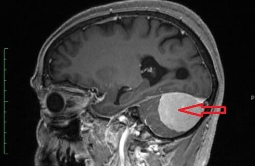 Лучевая терапия мозжечка последствия